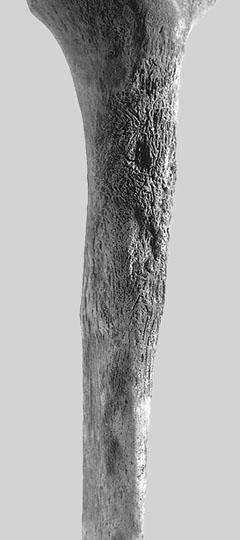 Remains at Kleinburg Ossurary